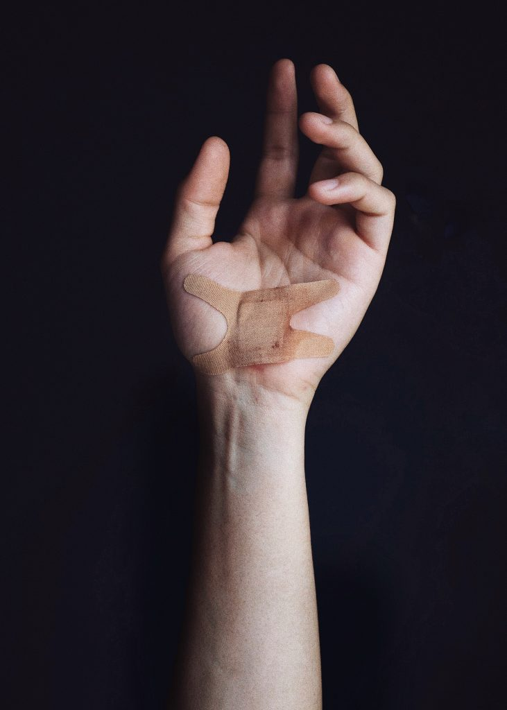 Injuries to the hand are among some of the most common moving injuries